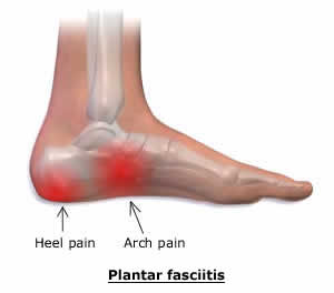 Image result for side heel pain